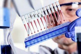 Украина получит от Британии до 21 млн фунтов кредита для проведения ПЦР-исследований